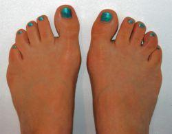 Füße mit Shellac